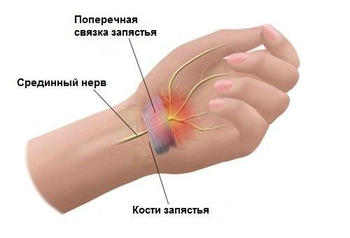 Защемление срединного нерва, который проходит к ладони и пальцам через срединный канал. Вызывает онемение, колющую, тянущую боль,