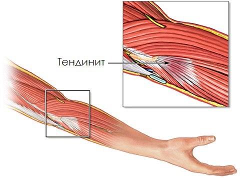 Дистрофическое поражение в области сухожилий крупных мышц. Проявляется сильными болями и нарушением двигательной активности в пораженном суставе, существует риск травмирования и отрыва пораженных сухожилий от места крепления к кости.