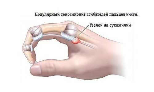 Обычно поражаются сухожилия, отвечающие за сгибание и разгибание руки в локте, ноги в колене, а также отведение в сторону пальцев. При травме суставов человек чувствует боль, если пытается шевелить конечностями. В запущенных случаях на суставах и сухожилиях образуются рубцы.